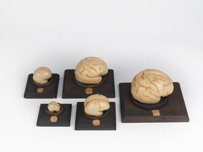 <p>Wax models of embryonic brains. [The Hunterian, University of Glasgow]</p>