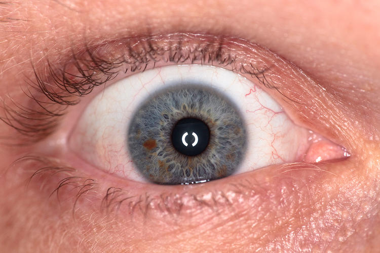 "<p>""Eyes vary in curvature and shape--and the pupil, color or blood vessels can be different from each other. So there's no exact match, but with digital technology, we can home in on perfection,"" says Stolpe.</p>"