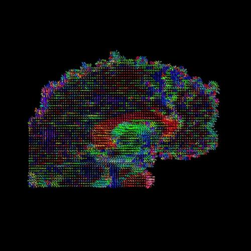 <p>Since 2010, the <a href=&quot;http://www.humanconnectomeproject.org/&quot; target=&quot;_blank&quot;>Human Connectome Project</a>, funded by $40 million dollars from the National Institutes of Health, has been working toward a high-resolution map of the brain's connections.</p>