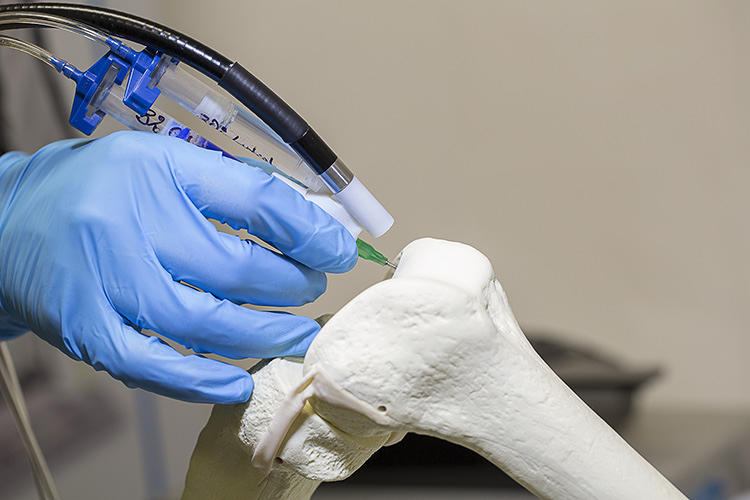 <p>A surgical 'pen' that works a little like a mini-3-D printer may soon help repair damaged bones.</p>