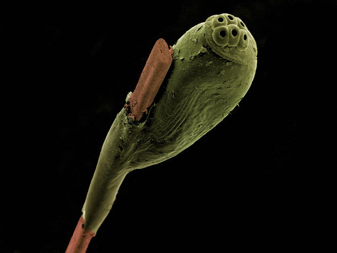 <p>A colorized scanning electron micrograph (SEM) of a head louse egg attached to a strand of human hair.</p>