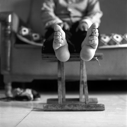 <p>These black-and-white images of &quot;lotus feet,&quot; considered highly fashionable for centuries, are difficult to look at.</p>