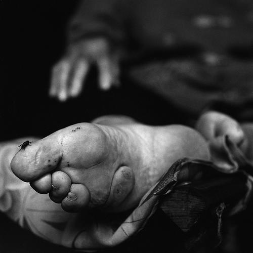 <p>The 1911 ban stopped foot-binding in large cities, but the practice continued illegally for more than 20 years in rural areas, until the bindings were forcibly removed by government decree.</p>