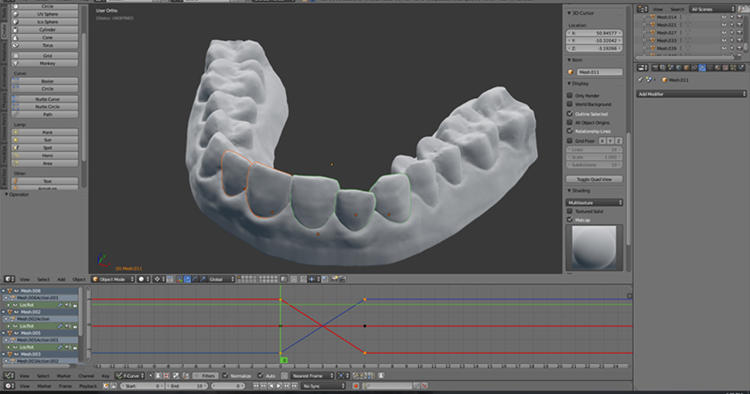 <p>The process requires lots of experience when planning the design of the aligner.</p>