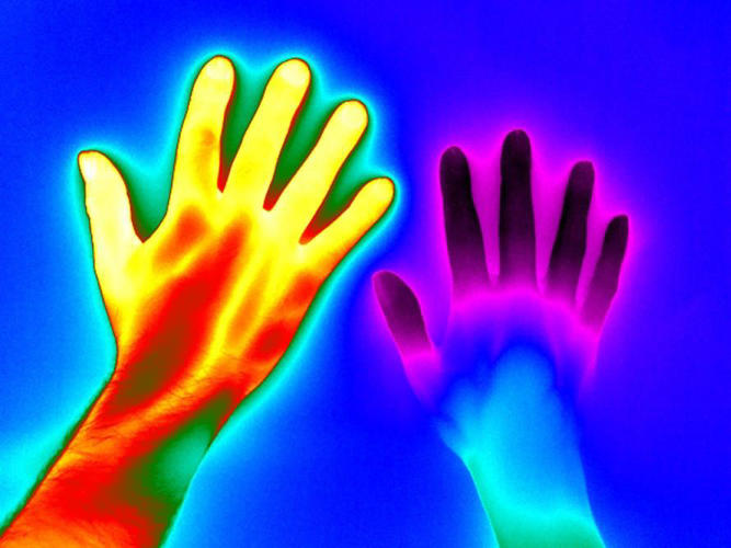 <p>Raynaud's disease. Matthew Clavey, Thermal Vision Research</p>